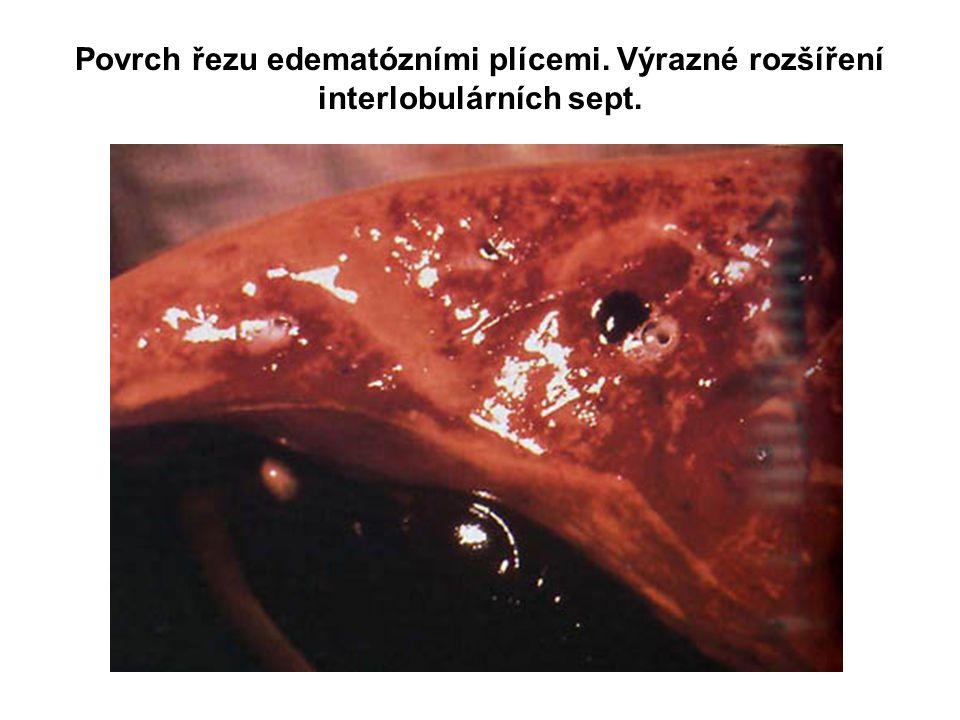 Povrch řezu edematózními plícemi