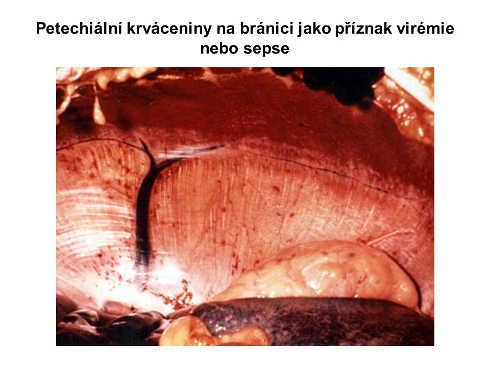 Petechiální krváceniny na bránici jako příznak virémie nebo sepse