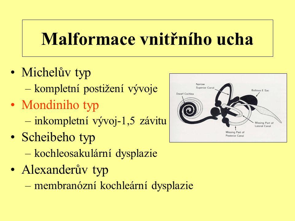 Malformace vnitřního ucha