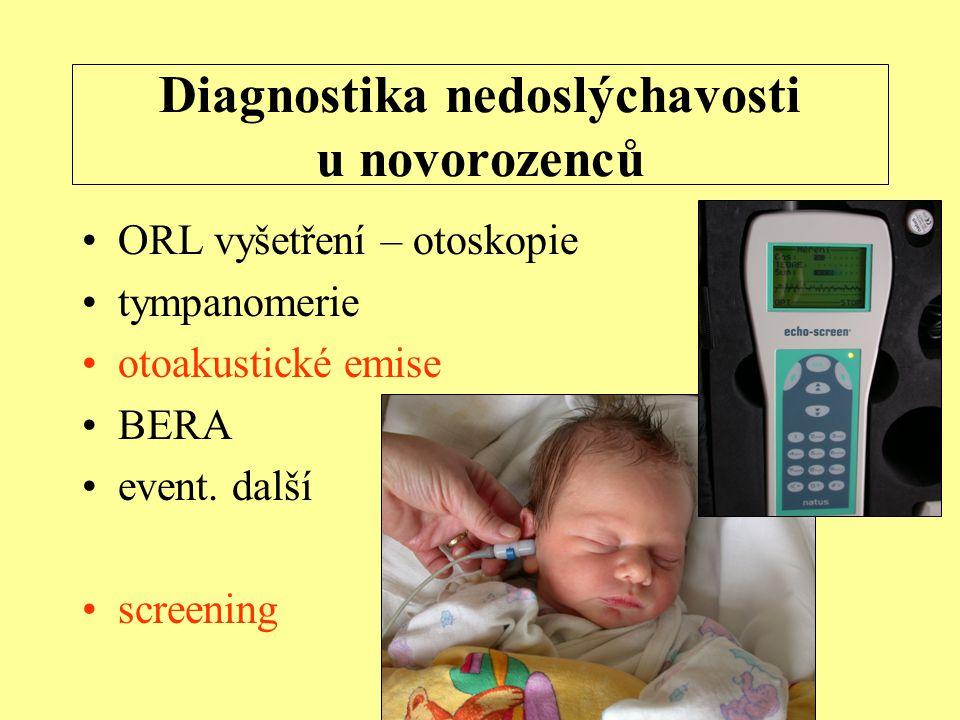Diagnostika nedoslýchavosti u novorozenců