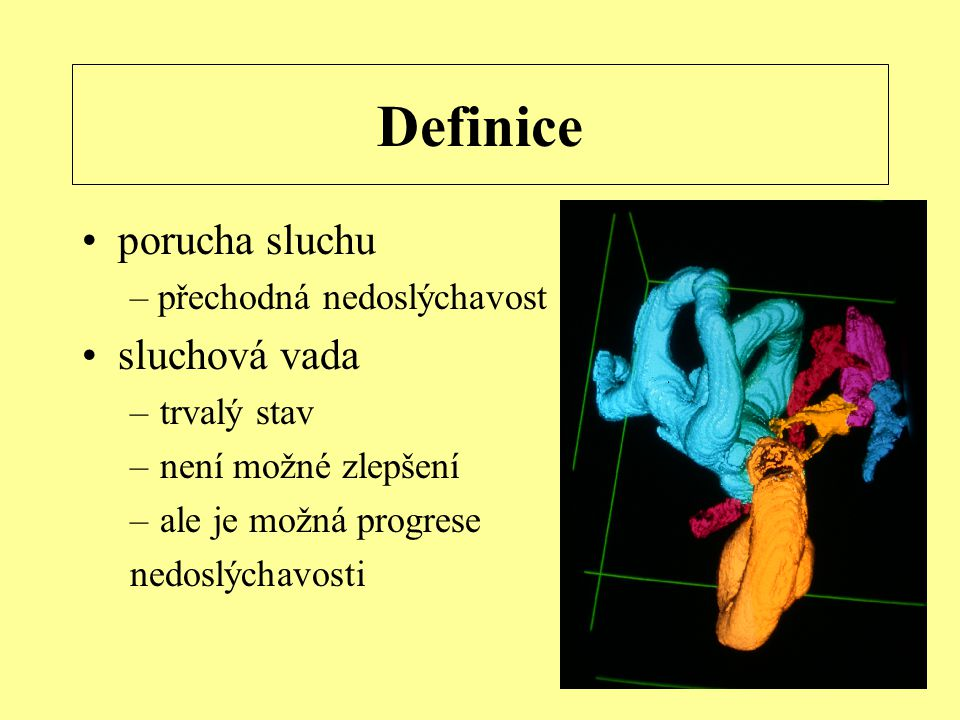 Definice porucha sluchu sluchová vada – přechodná nedoslýchavost