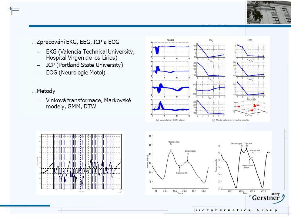 Zpracování EKG, EEG, ICP a EOG