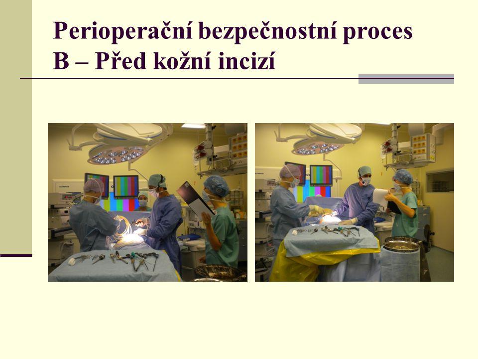 Perioperační bezpečnostní proces B – Před kožní incizí
