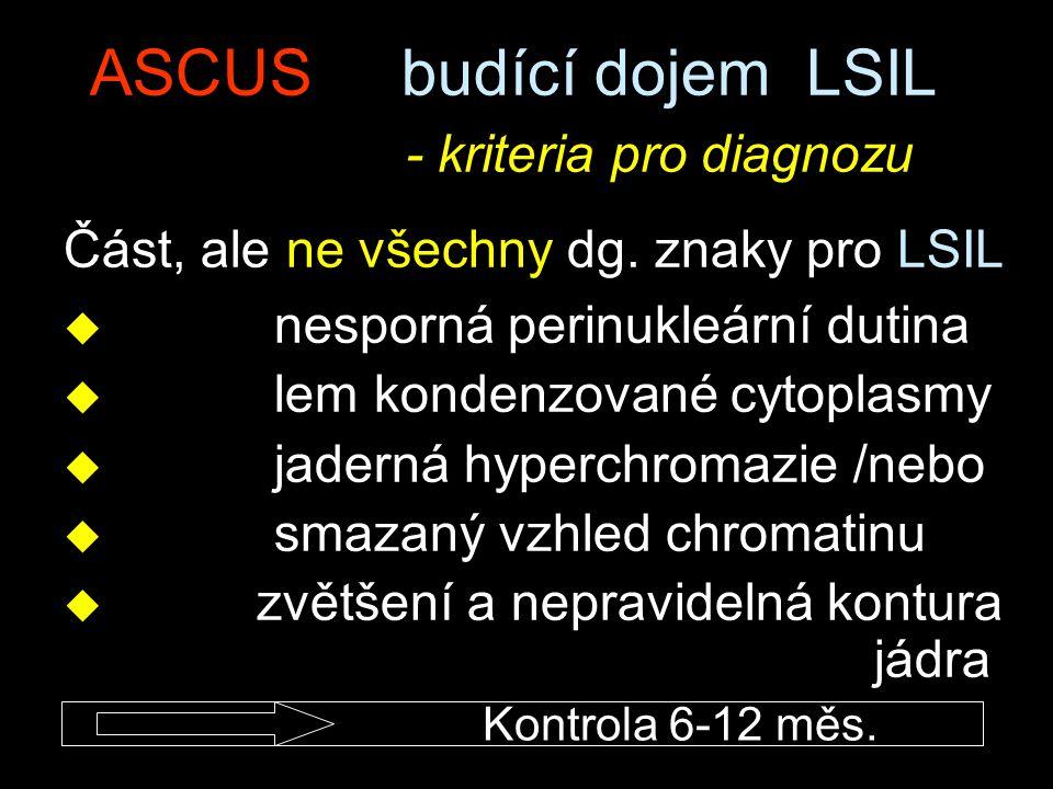 ASCUS budící dojem LSIL - kriteria pro diagnozu