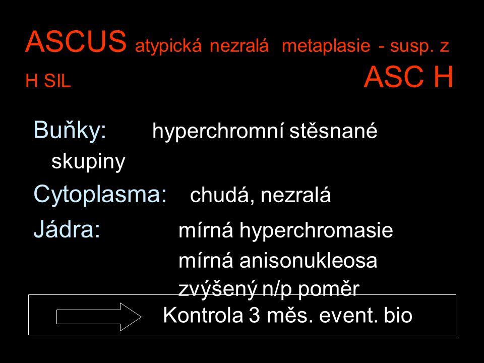 ASCUS atypická nezralá metaplasie - susp. z H SIL ASC H