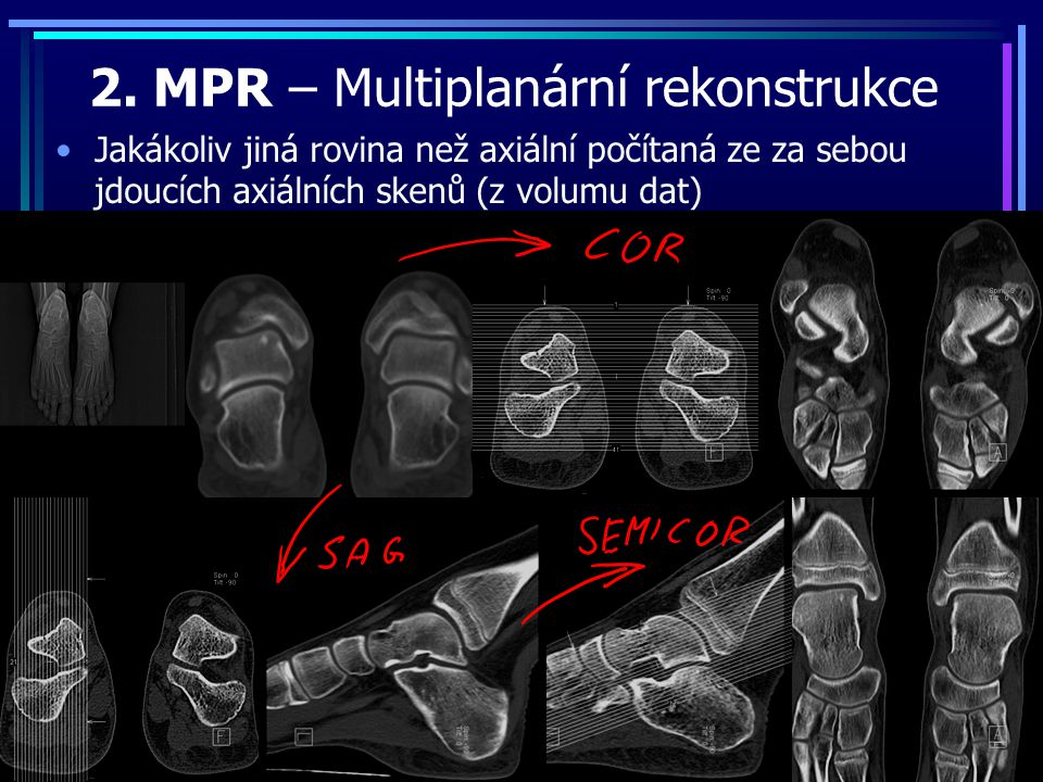 2. MPR – Multiplanární rekonstrukce