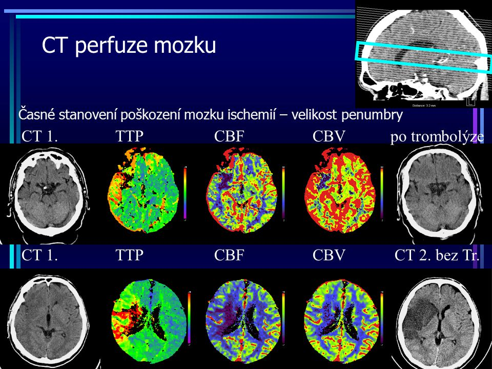 CT perfuze mozku CT 1. TTP CBF CBV po trombolýze