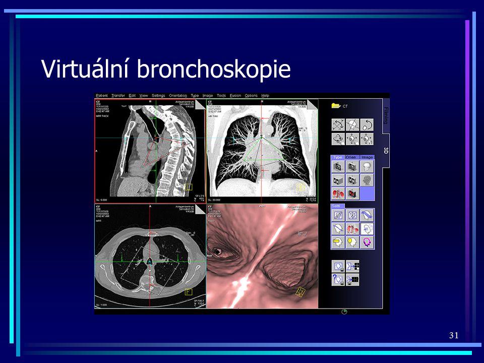 Virtuální bronchoskopie