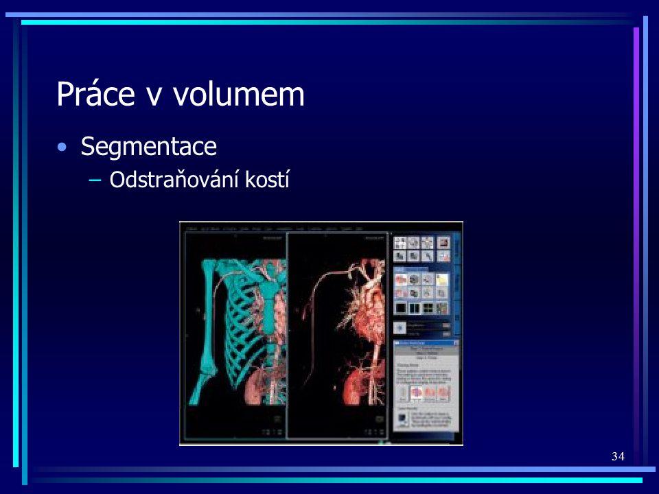 Práce v volumem Segmentace Odstraňování kostí
