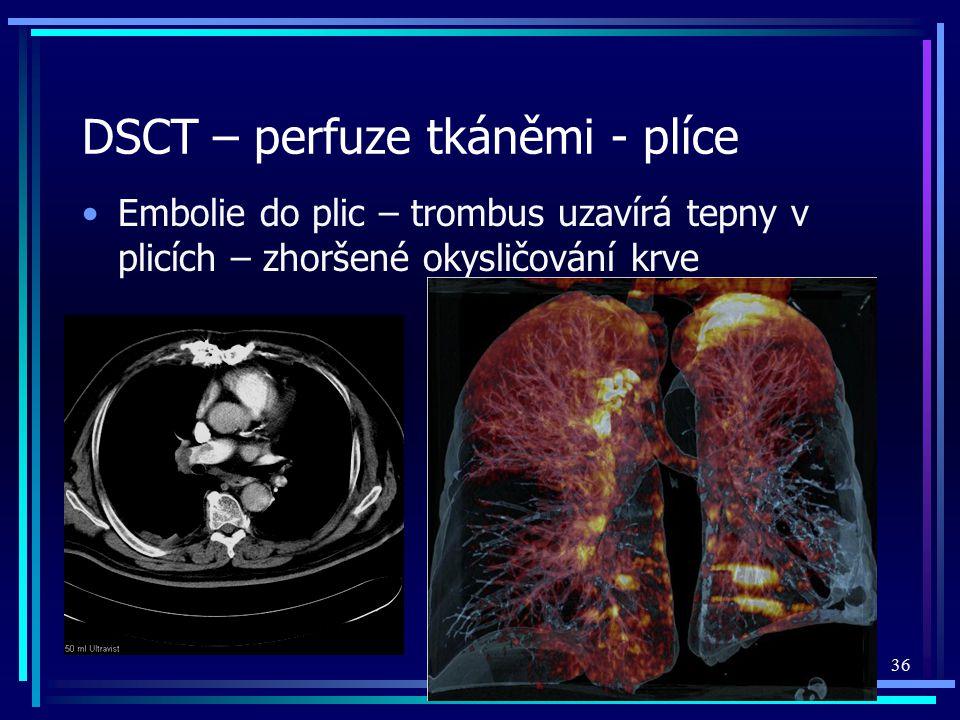 DSCT – perfuze tkáněmi - plíce