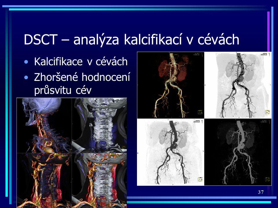 DSCT – analýza kalcifikací v cévách