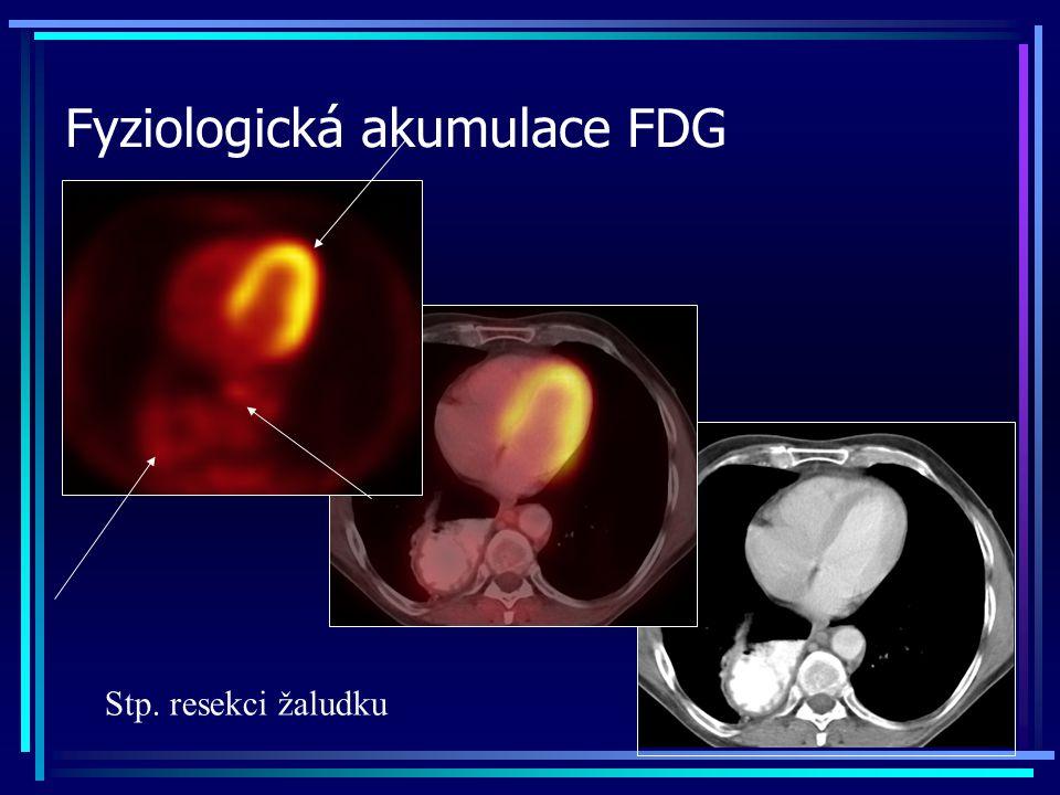 Fyziologická akumulace FDG