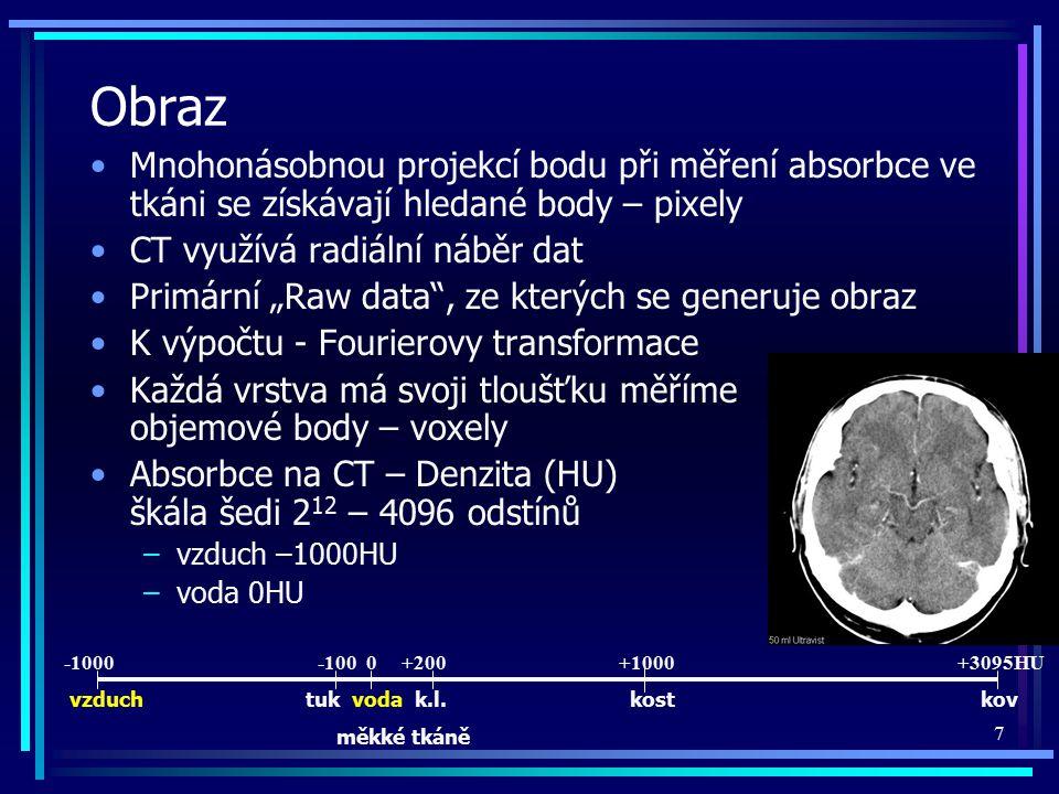 Obraz Mnohonásobnou projekcí bodu při měření absorbce ve tkáni se získávají hledané body – pixely. CT využívá radiální náběr dat.