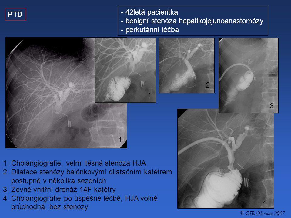 benigní stenóza hepatikojejunoanastomózy - perkutánní léčba PTD