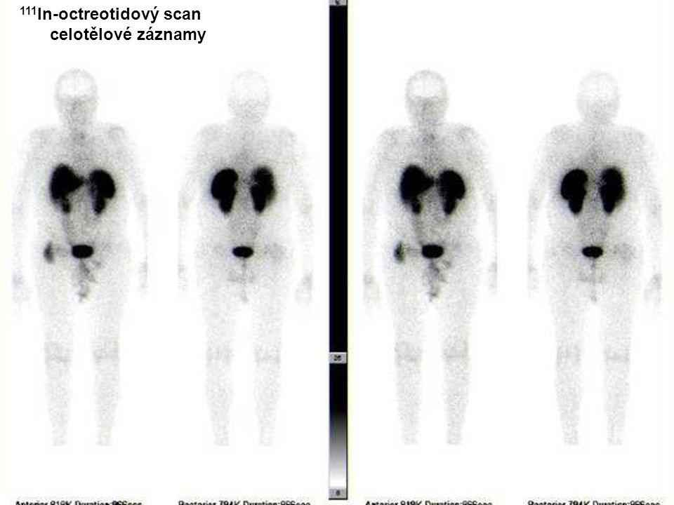 111In-octreotidový scan celotělové záznamy