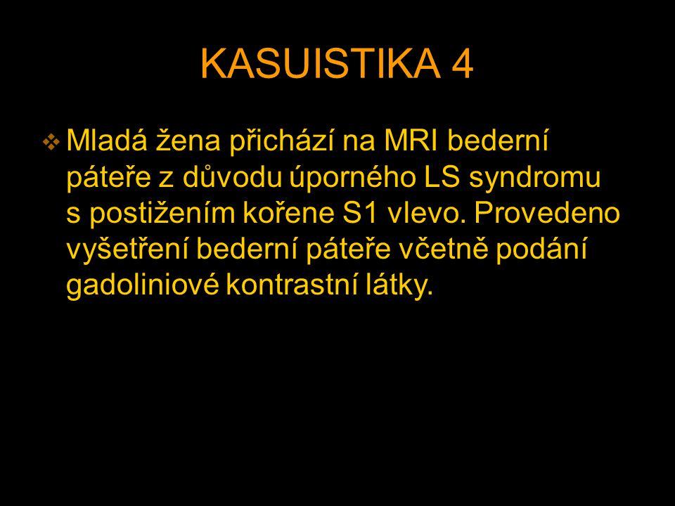 KASUISTIKA 4