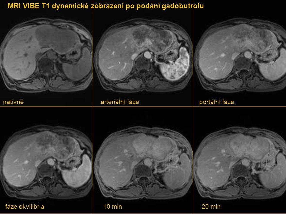MRI VIBE T1 dynamické zobrazení po podání gadobutrolu