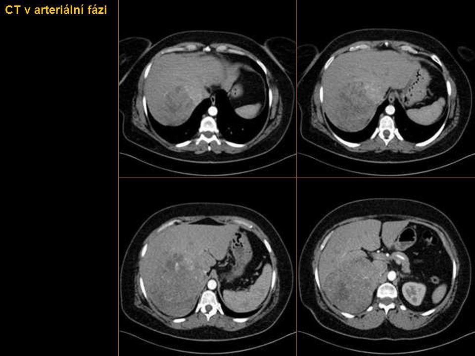 CT v arteriální fázi