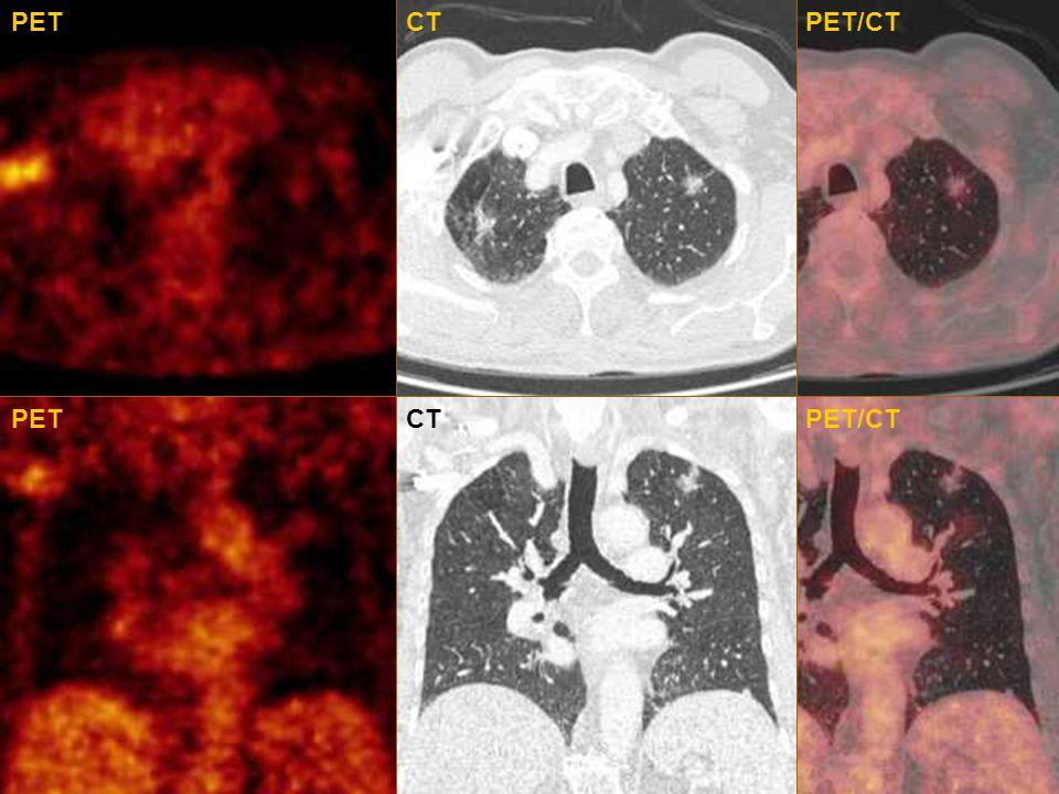 PET CT PET/CT PET CT PET/CT