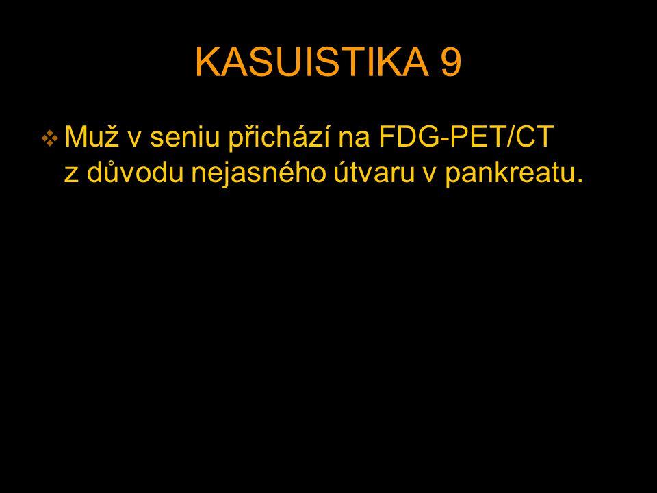 KASUISTIKA 9 Muž v seniu přichází na FDG-PET/CT z důvodu nejasného útvaru v pankreatu.