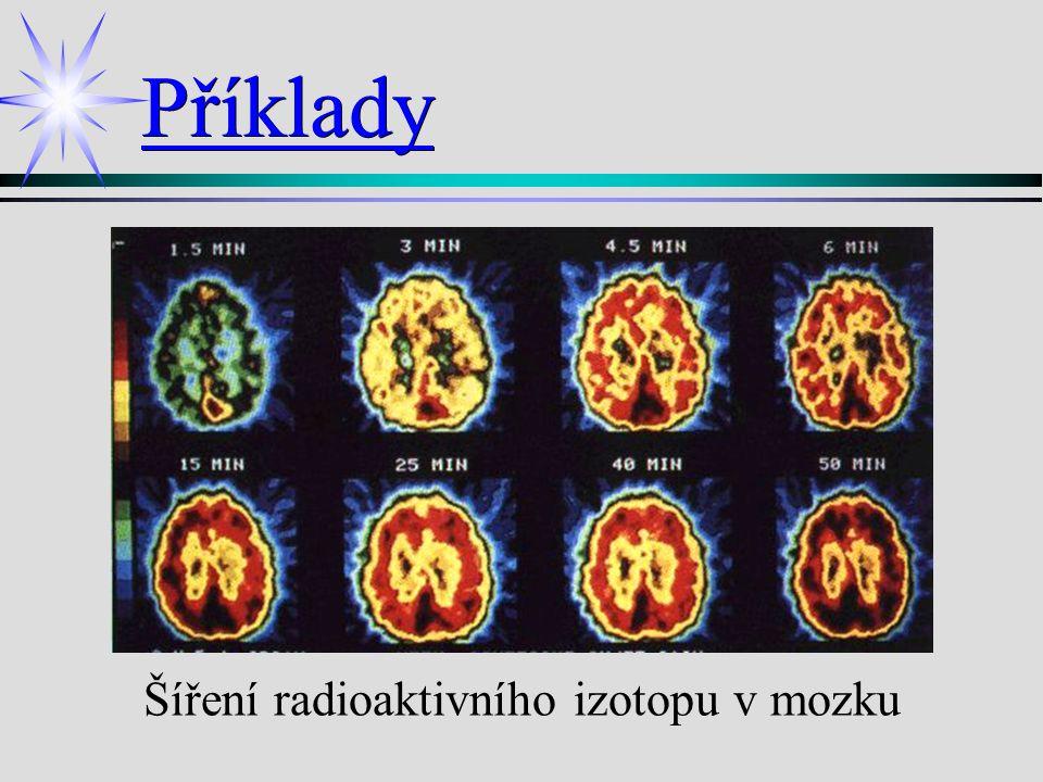 Šíření radioaktivního izotopu v mozku