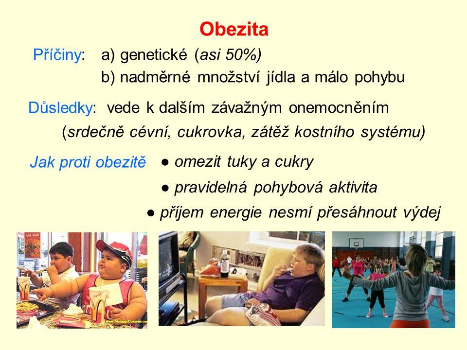 Obezita Příčiny: a) genetické (asi 50%)