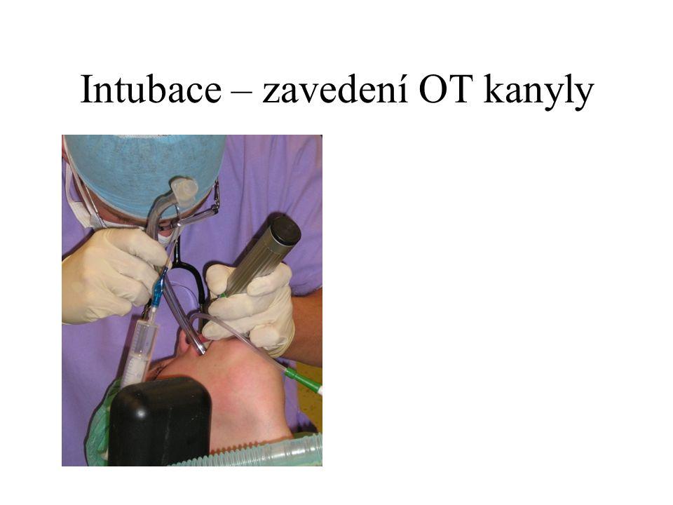 Intubace – zavedení OT kanyly