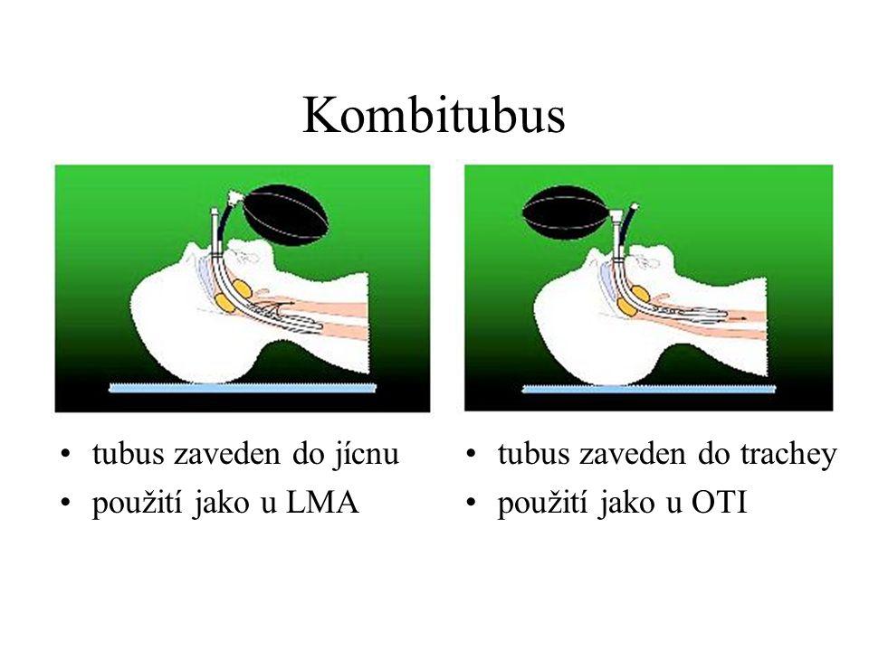 Kombitubus tubus zaveden do jícnu použití jako u LMA