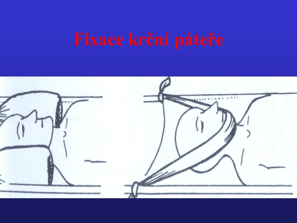 Fixace krční páteře