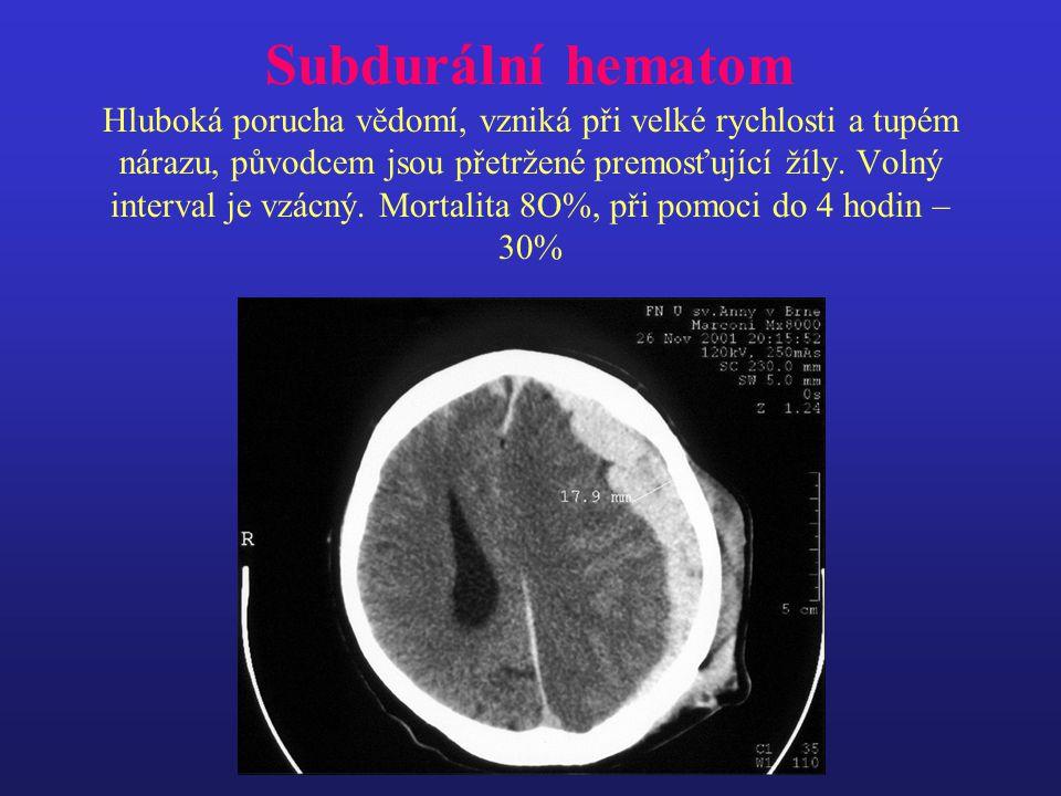 Subdurální hematom Hluboká porucha vědomí, vzniká při velké rychlosti a tupém nárazu, původcem jsou přetržené premosťující žíly.