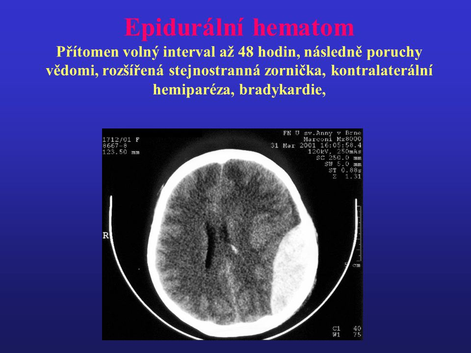 Epidurální hematom Přítomen volný interval až 48 hodin, následně poruchy vědomi, rozšířená stejnostranná zornička, kontralaterální hemiparéza, bradykardie,
