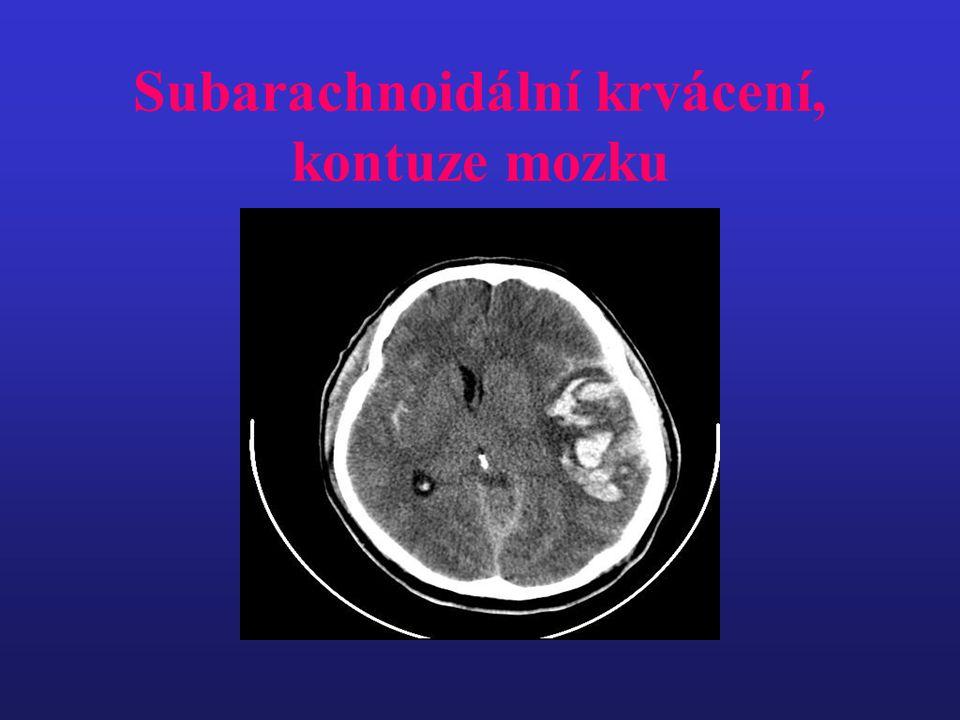 Subarachnoidální krvácení, kontuze mozku