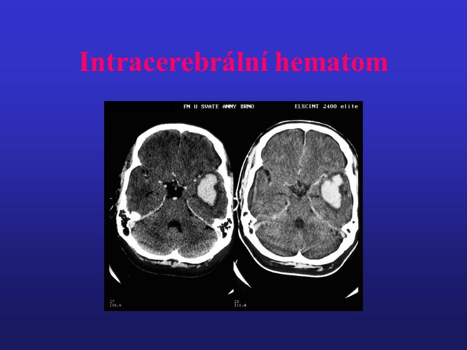 Intracerebrální hematom