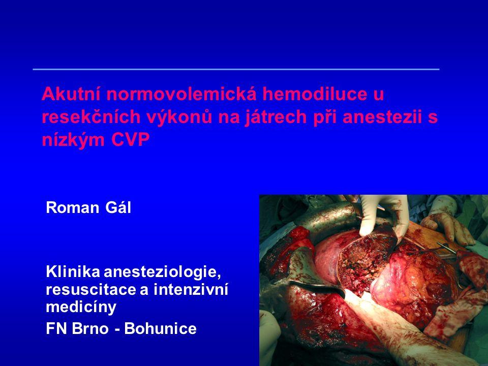 Akutní normovolemická hemodiluce u resekčních výkonů na játrech při anestezii s nízkým CVP