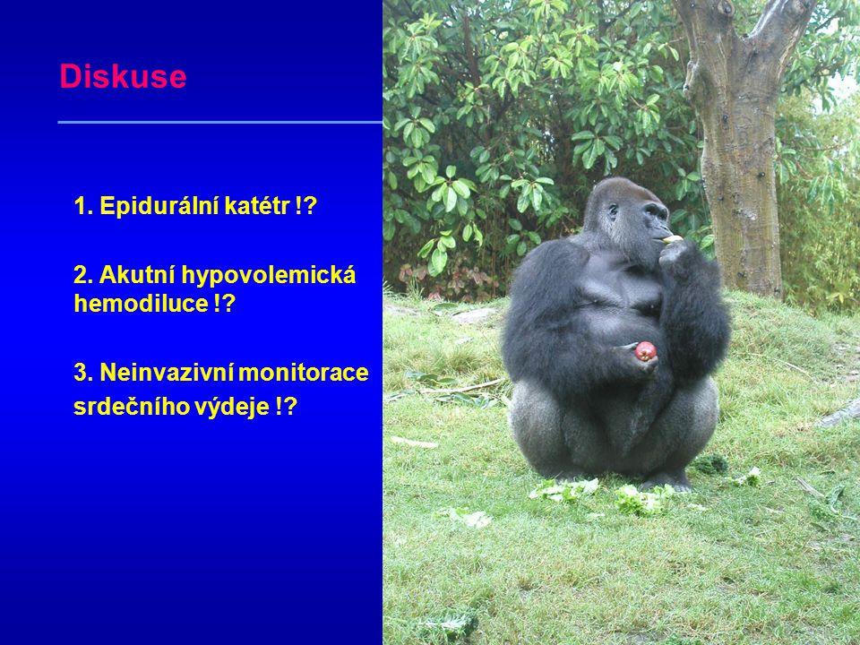 Diskuse 1. Epidurální katétr ! 2. Akutní hypovolemická hemodiluce !