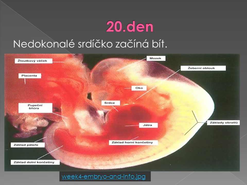 20.den Nedokonalé srdíčko začíná bít. week4-embryo-and-info.jpg