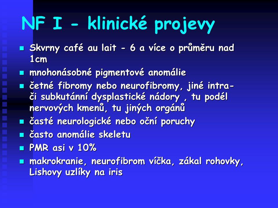 NF I - klinické projevy Skvrny café au lait - 6 a více o průměru nad 1cm. mnohonásobné pigmentové anomálie.