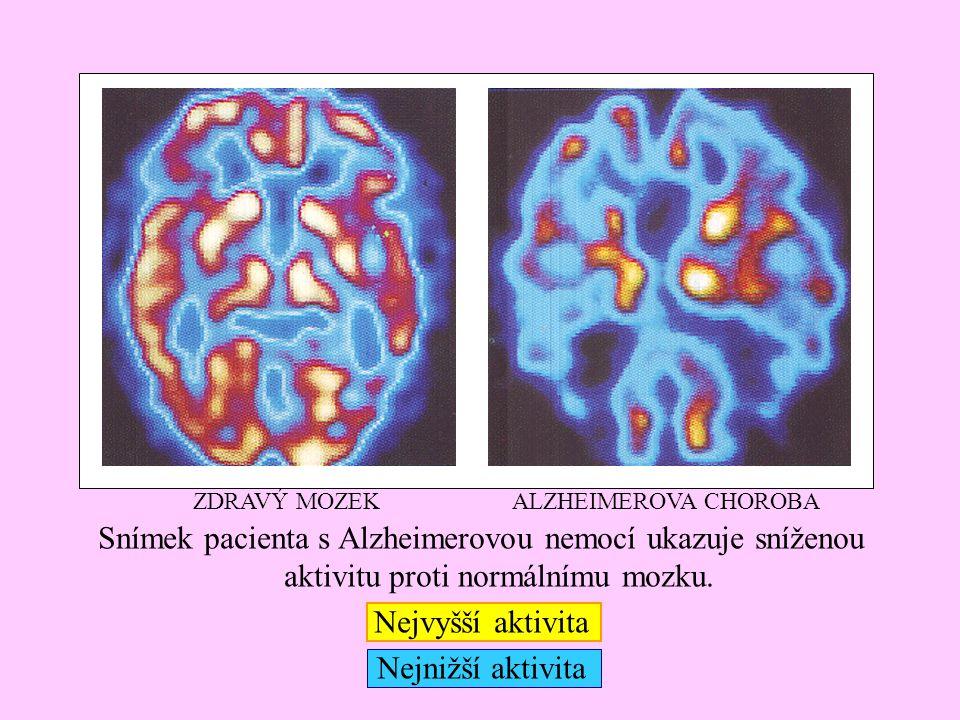 ZDRAVÝ MOZEK ALZHEIMEROVA CHOROBA. Snímek pacienta s Alzheimerovou nemocí ukazuje sníženou aktivitu proti normálnímu mozku.