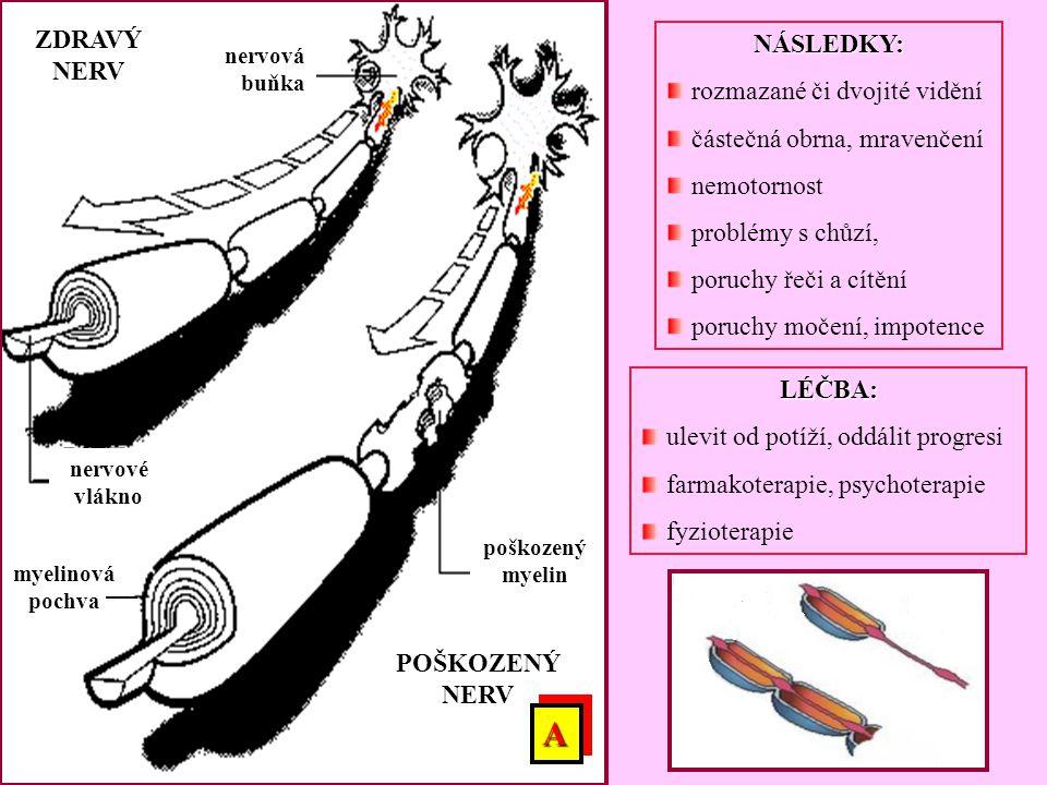 A ZDRAVÝ NERV NÁSLEDKY: rozmazané či dvojité vidění