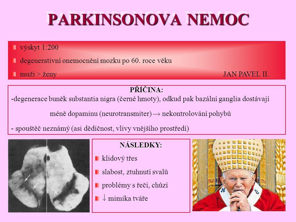 PARKINSONOVA NEMOC výskyt 1:200