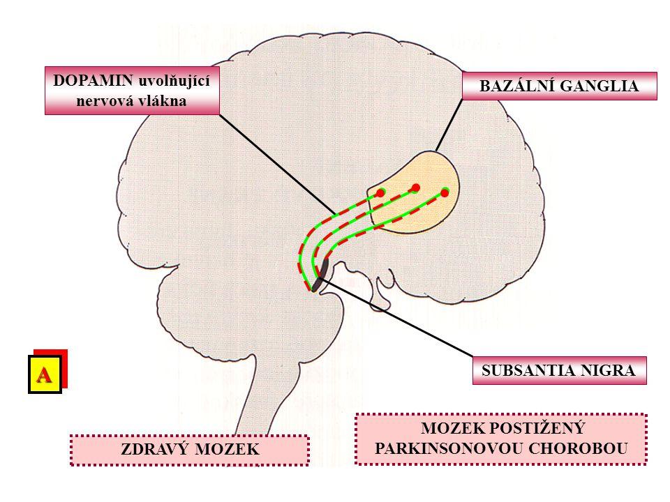 A DOPAMIN uvolňující nervová vlákna BAZÁLNÍ GANGLIA SUBSANTIA NIGRA