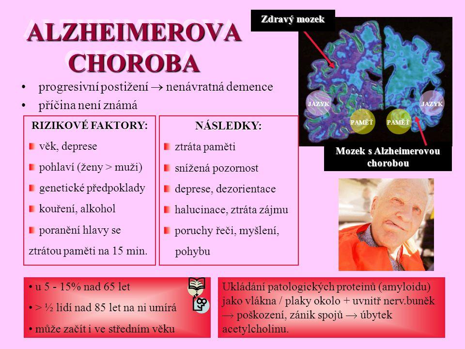 Mozek s Alzheimerovou chorobou