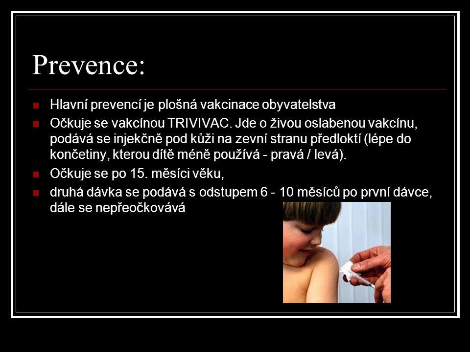 Prevence: Hlavní prevencí je plošná vakcinace obyvatelstva