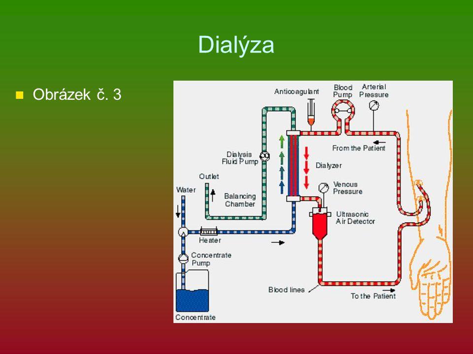 Dialýza Obrázek č. 3
