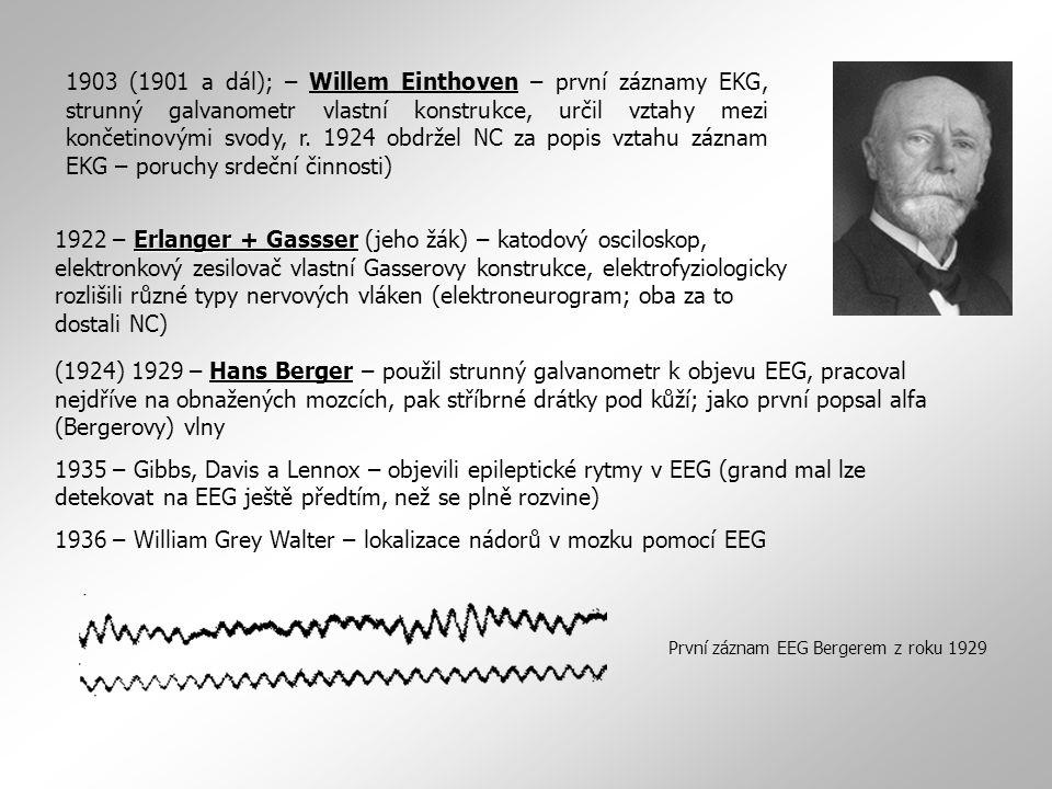 1936 – William Grey Walter – lokalizace nádorů v mozku pomocí EEG