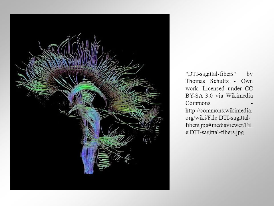 DTI-sagittal-fibers by Thomas Schultz - Own work