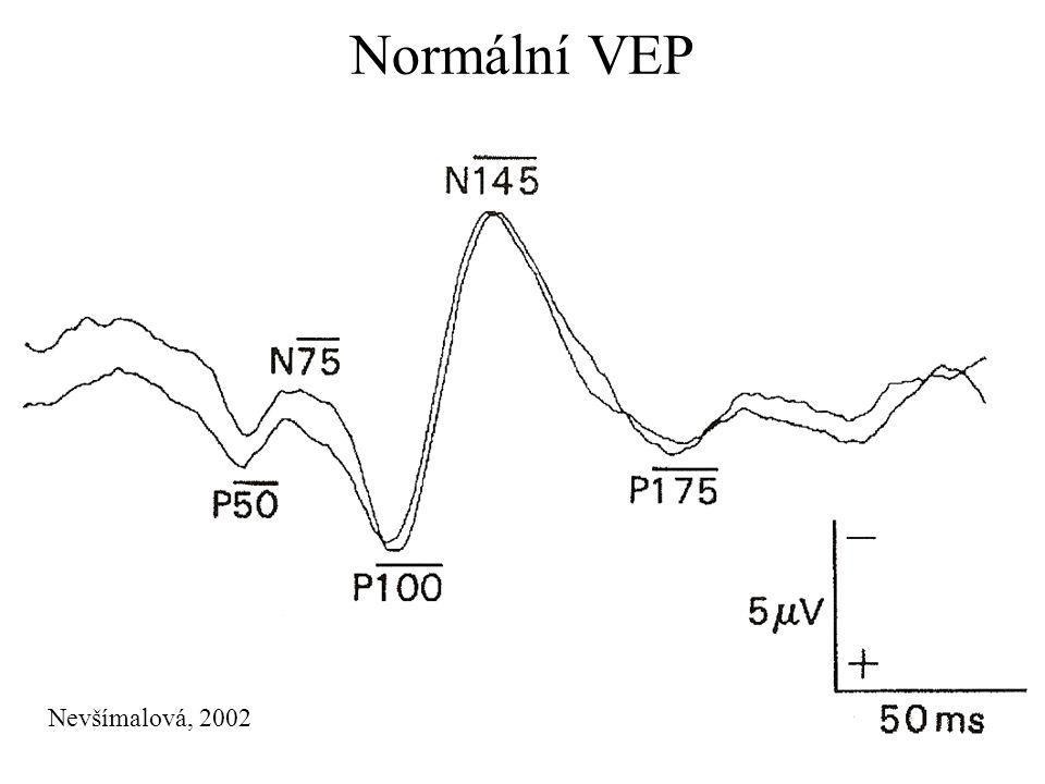 Normální VEP Nevšímalová, 2002