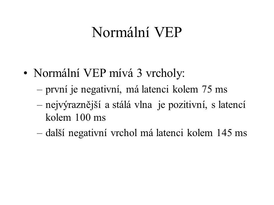 Normální VEP Normální VEP mívá 3 vrcholy: