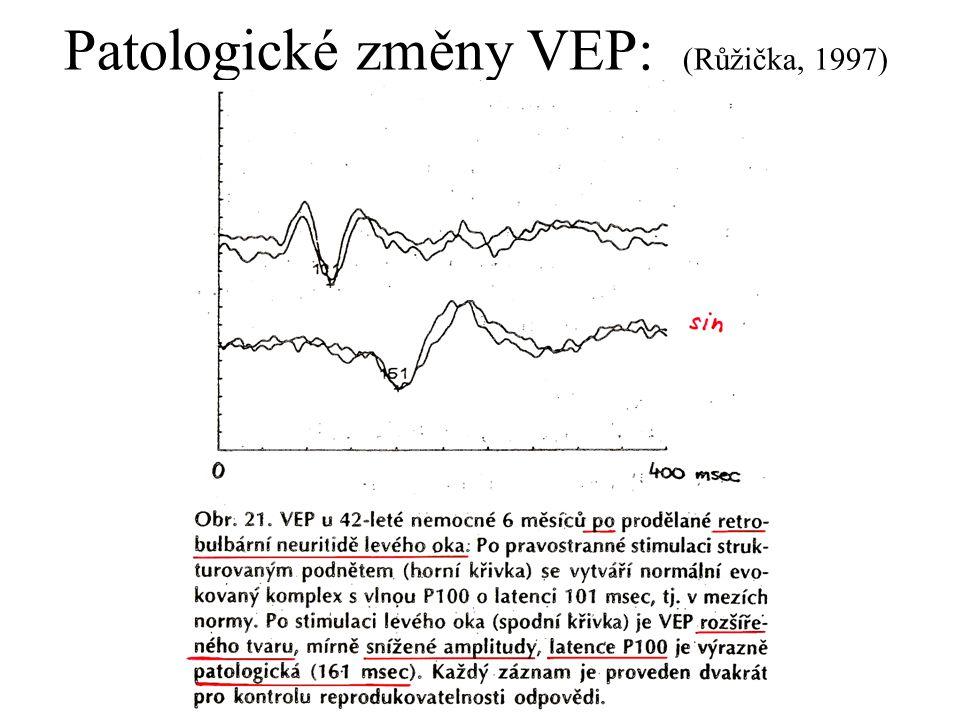 Patologické změny VEP: (Růžička, 1997)