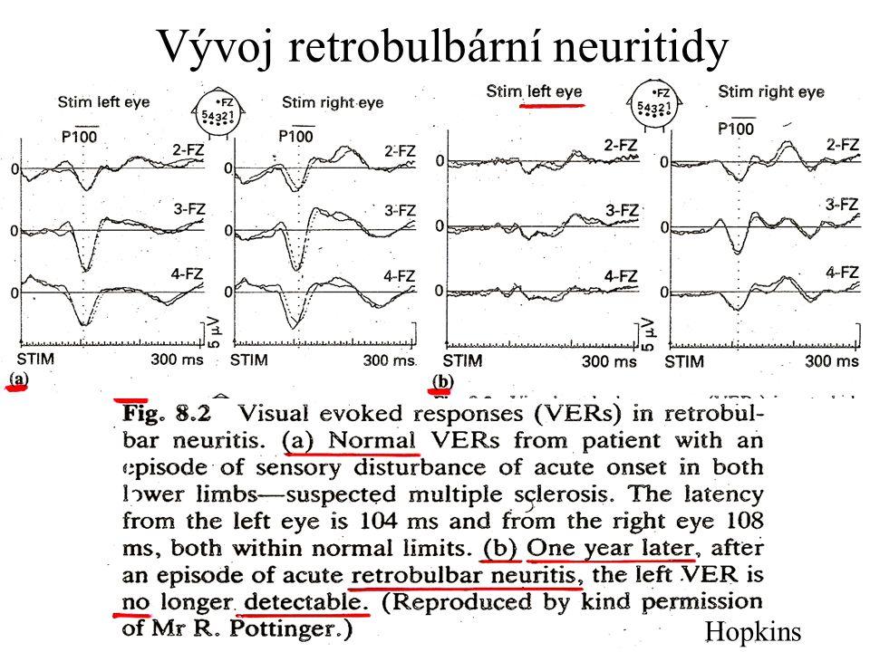 Vývoj retrobulbární neuritidy